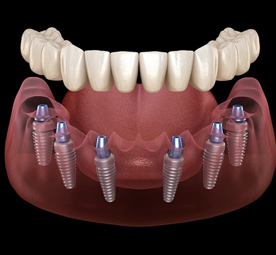 A digital image of 6 dental implants surgically placed into the jawbone while a custom denture is placed on top of the implants