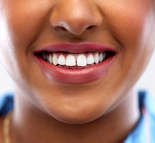 A young woman with a gap between her teeth