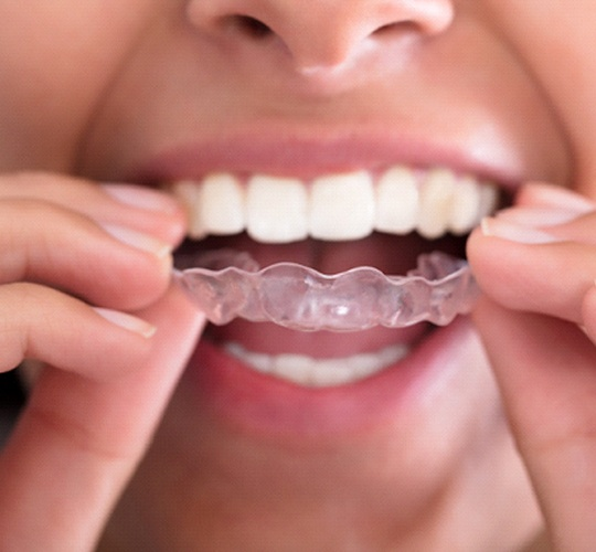 A woman inserting an Invisalign aligner