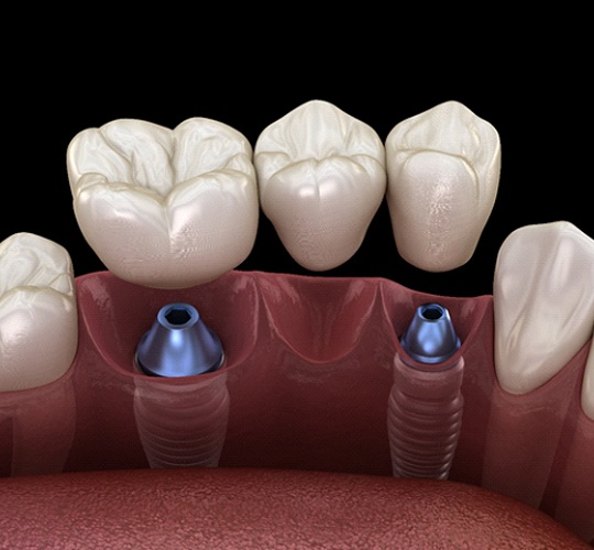 A digital image of an implant bridge being secured into place on the bottom arch of teeth