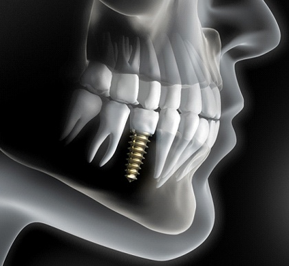 An x-ray image of a single tooth implant