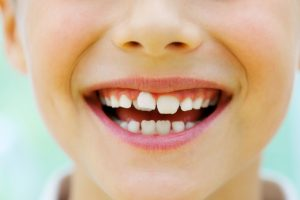How crooked teeth can affect your child's health with your dentist in Westport.