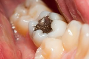 Why would my dentist in Westport want to remove my metal fillings?
