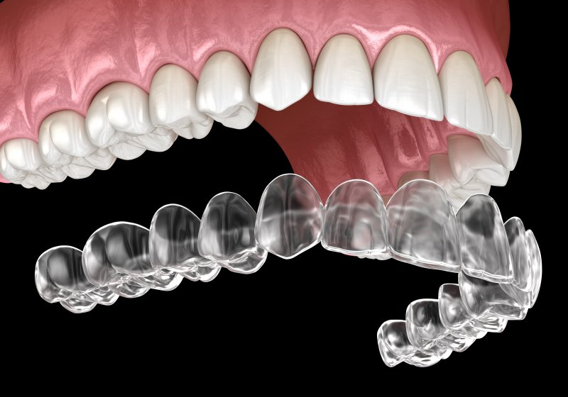 a digital image of an Invisalign clear aligner going on over a top row of teeth